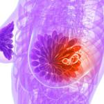 Аденоз в молочных железах — симптомы и лечение.