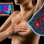 Первые признаки мастопатии молочной железы у женщин