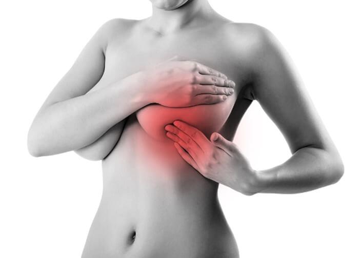 Уплотнение в груди при мастопатии