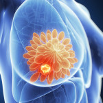 Фиброзно-кистозная мастопатия: диагностика и способы лечения