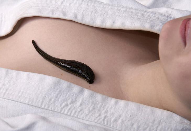 Пиявка в зоне декольте во время гирудотерапии при мастопатии