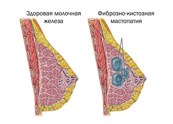 Здоровая молочная железа, и железа с множеством фиброзных кист