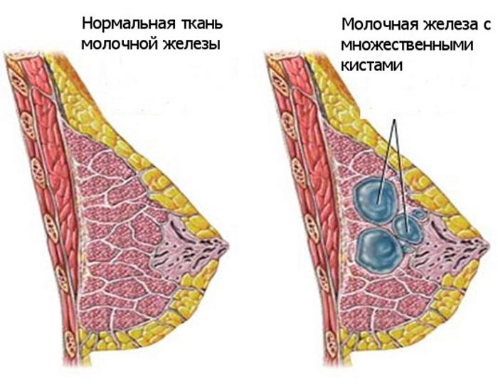 Здоровая молочная железа и железа с множественными кистами - аденозом