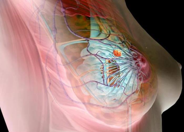 Так выглядит узловая мастопатия молочной зелезы