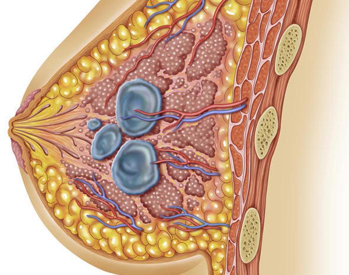 Схема молочной железы в которой показаны кисты