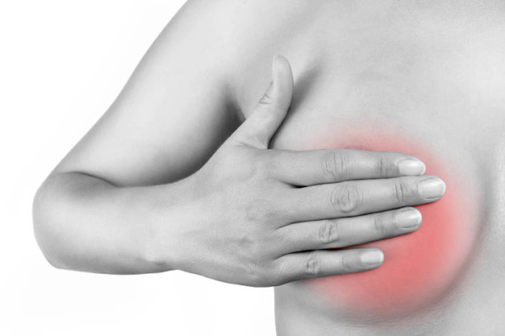 simptomy-raka-molochnoj-zhelezy-1
